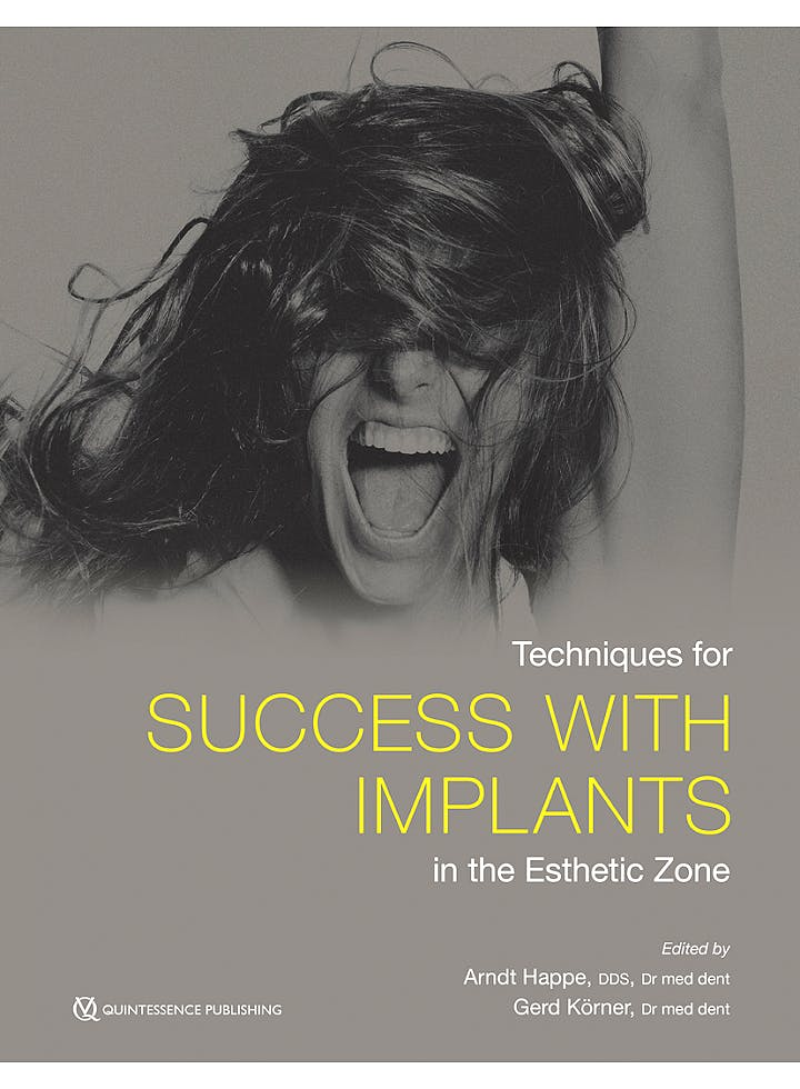 Portada del libro 9780867158229 Techniques for Success with Implants in the Esthetic Zone