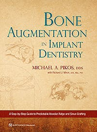 Portada del libro 9780867158250 Bone Augmentation in Implant Dentistry. A Step-by-Step Guide to Predictable Alveolar Ridge and Sinus Grafting
