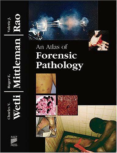 Portada del libro 9780891894308 An Atlas of Forensic Pathology