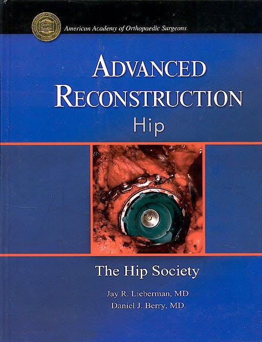 Portada del libro 9780892033461 Advanced Reconstruction. Hip