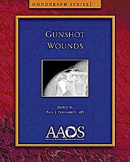 Portada del libro 9780892037506 Gunshot Wounds