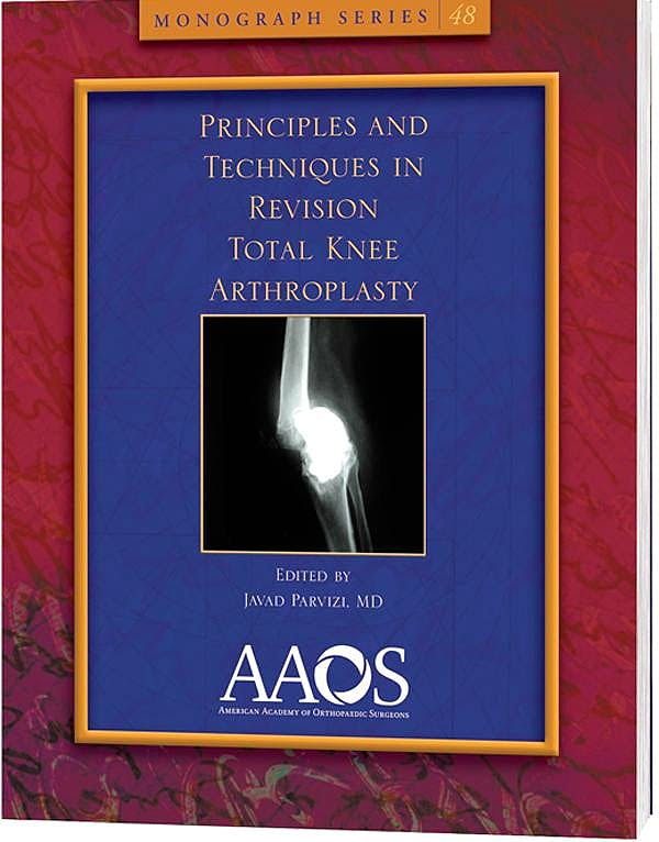 Portada del libro 9780892038428 Principles and Techniques in Revision Total Knee Arthroplasty (Monograph Series 48)