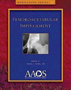 Portada del libro 9780892039722 Femoroacetabular Impingement