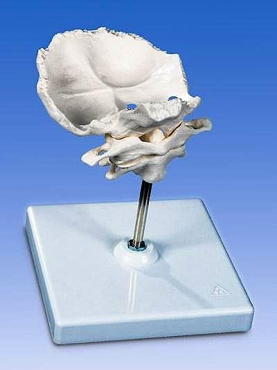 Atlas y Axis con Placa Occipital + Soporte