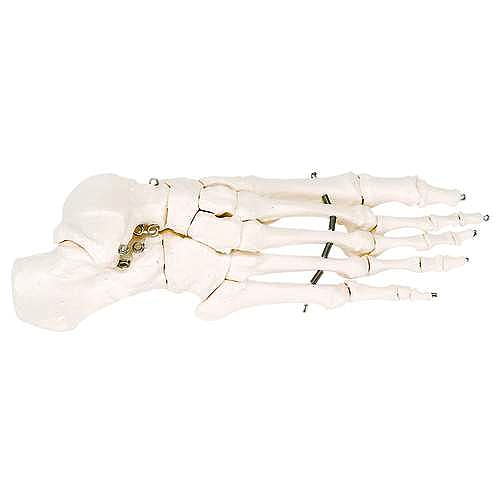 Esqueleto del Pie Unido con Alambre
