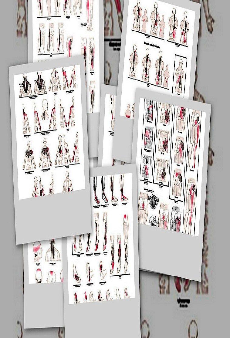 Lámina Puntos Gatillo: Colección 8 Láminas (Pack)