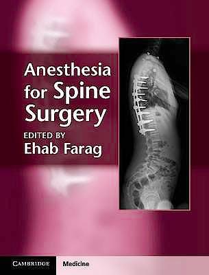 Portada del libro 9781107005310 Anesthesia for Spine Surgery