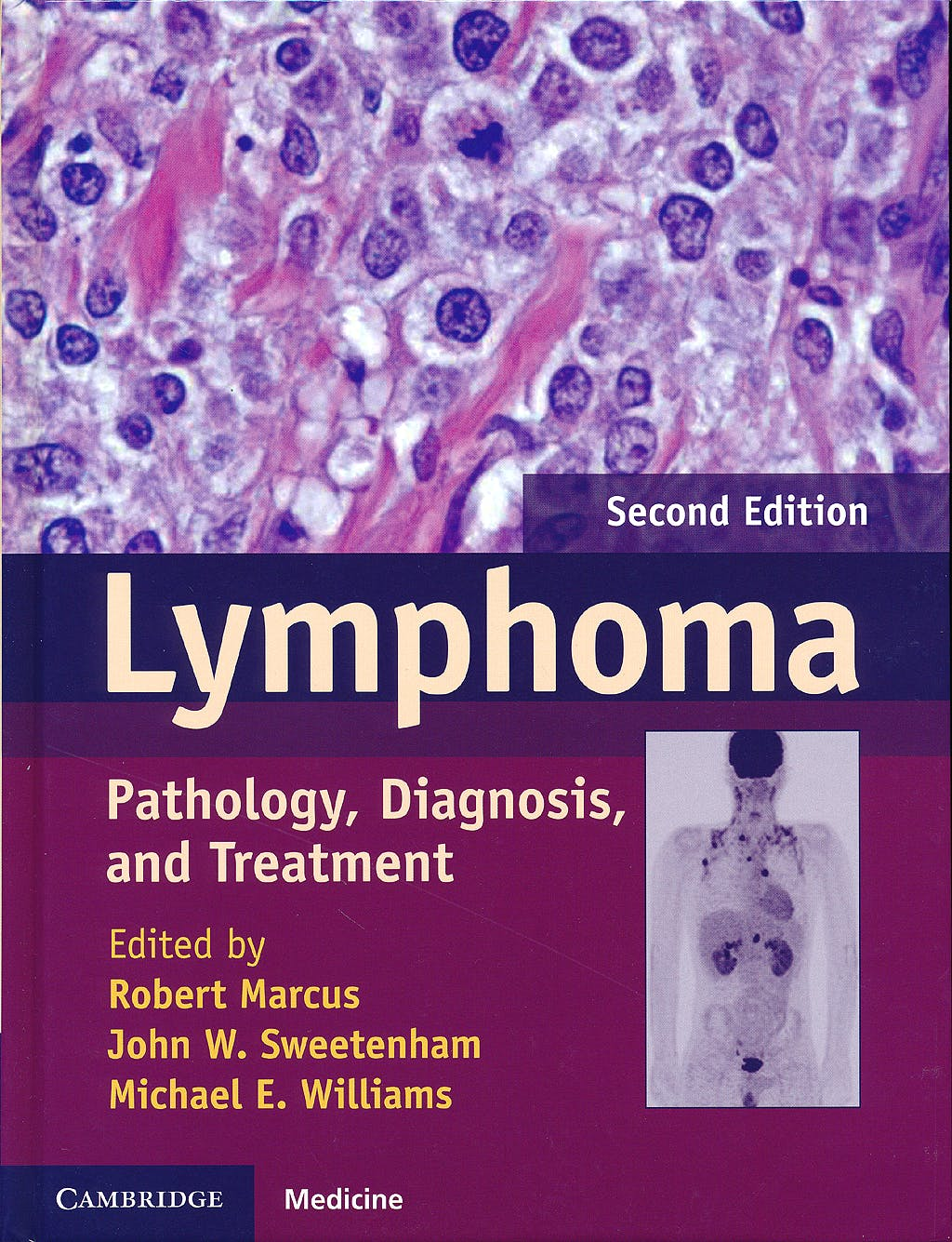 Portada del libro 9781107010598 Lymphoma. Pathology, Diagnosis and Treatment