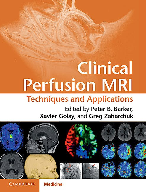 Portada del libro 9781107013391 Clinical Perfusion Mri. Techniques and Applications