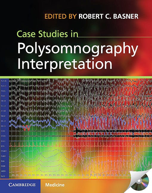 Portada del libro 9781107015395 Case Studies in Polysomnography Interpretation + Cd