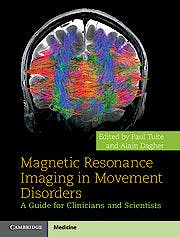 Portada del libro 9781107026360 Magnetic Resonance Imaging in Movement Disorders. a Guide for Clinicians and Scientists