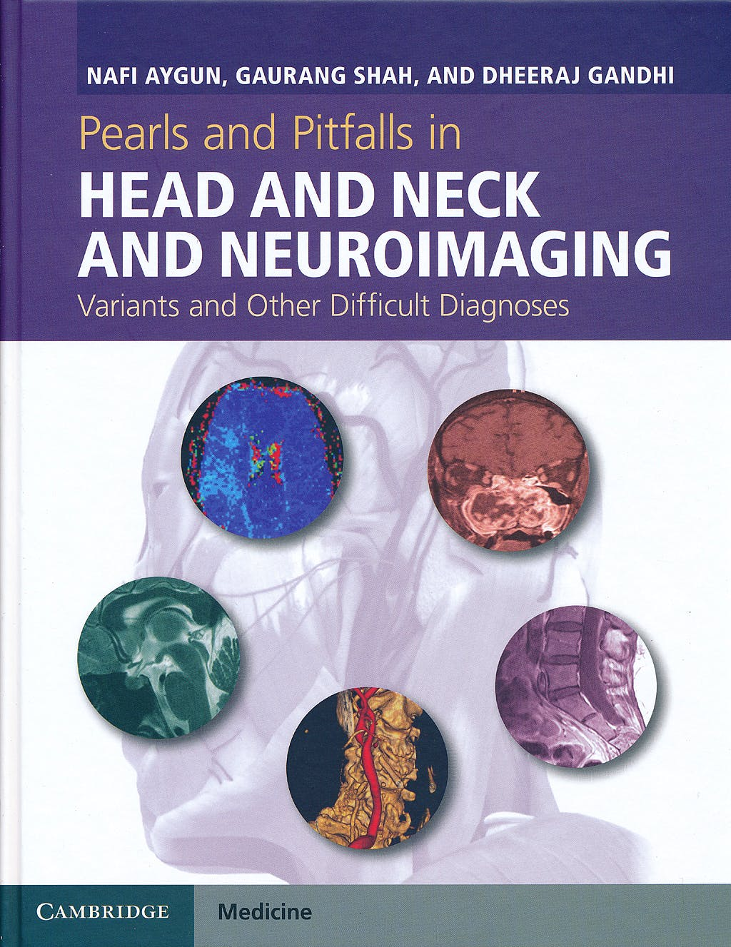 Portada del libro 9781107026643 Pearls and Pitfalls in Head and Neck and Neuroimaging. Variants and Other Difficult Diagnoses