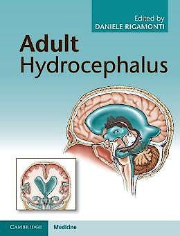Portada del libro 9781107031777 Adult Hydrocephalus