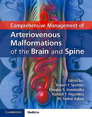 Portada del libro 9781107033887 Comprehensive Management of Arteriovenous Malformations of the Brain and Spine