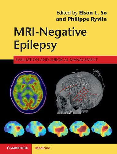 Portada del libro 9781107034235 Mri-Negative Epilepsy. Evaluation and Surgical Management