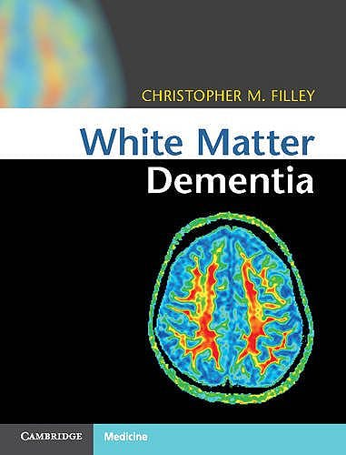 Portada del libro 9781107035416 White Matter Dementia