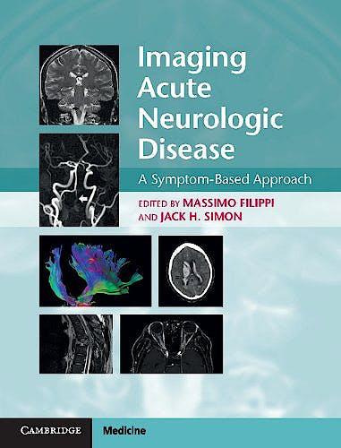Portada del libro 9781107035942 Imaging Acute Neurologic Disease. a Symptom-Based Approach