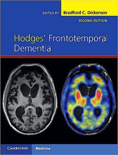 Portada del libro 9781107086630 Hodges' Frontotemporal Dementia