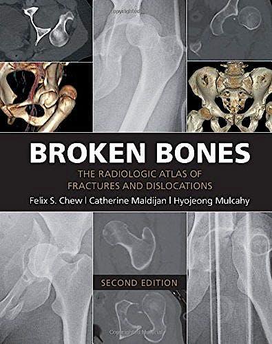 Portada del libro 9781107499232 Broken Bones. the Radiologic Atlas of Fractures and Dislocations