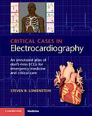Portada del libro 9781107535916 Critical Cases in Electrocardiography. An Annotated Atlas of Don't-Miss ECGs for Emergency and Critical Care