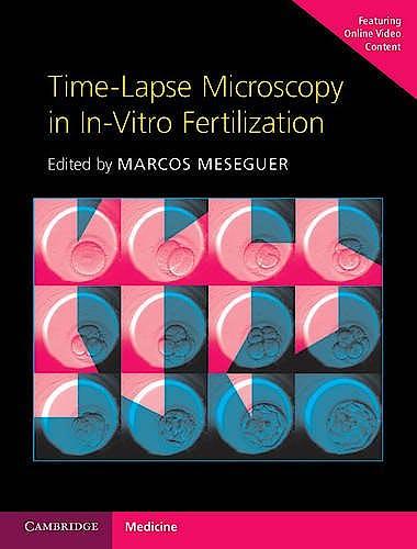 Portada del libro 9781107593268 Time-Lapse Microscopy in In-Vitro Fertilization (With Online Resource)