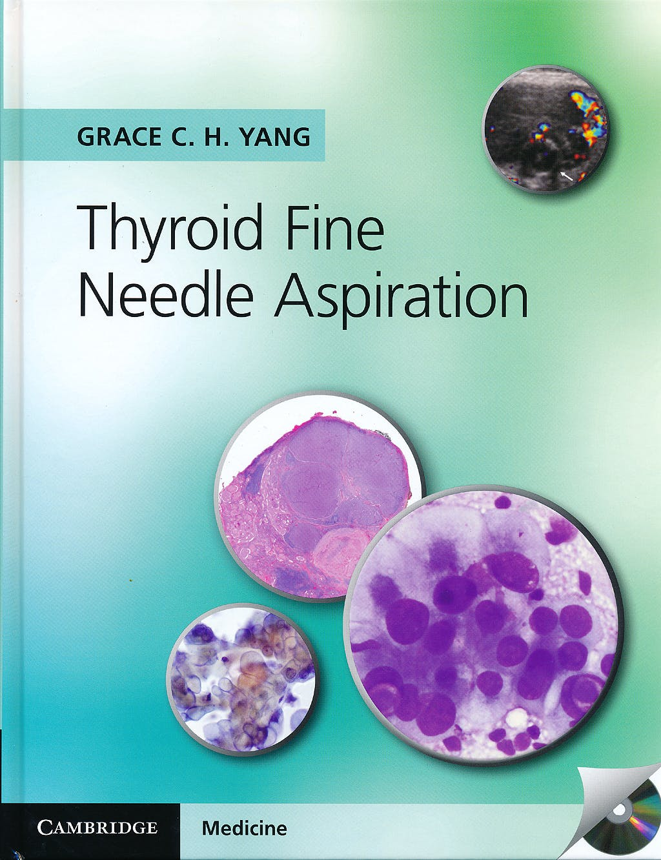 Portada del libro 9781107618138 Thyroid Fine Needle Aspiration