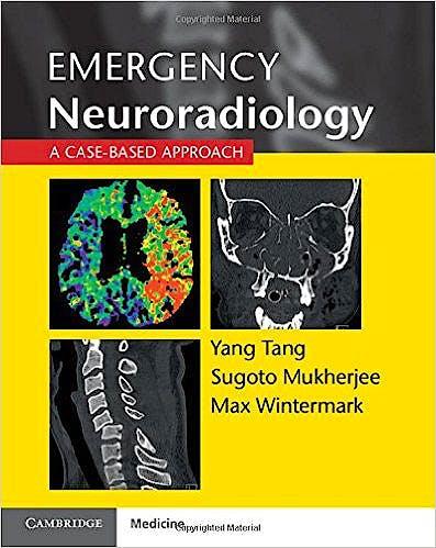 Portada del libro 9781107676138 Emergency Neuroradiology. a Case-Based Approach