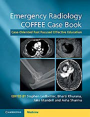 Portada del libro 9781107690769 Emergency Radiology Coffee Case Book. Case-Oriented Fast Focused Effective Education
