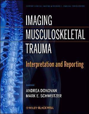 Portada del libro 9781118158814 Imaging Musculoskeletal Trauma. Interpretation and Reporting