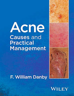 Portada del libro 9781118232774 Acne. Causes and Practical Management
