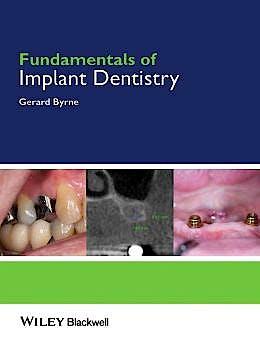 Portada del libro 9781118274965 Fundamentals of Implant Dentistry