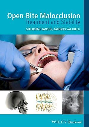 Portada del libro 9781118335987 Open-Bite Malocclusion. Treatment and Stability