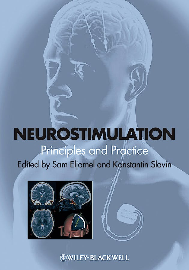 Portada del libro 9781118346358 Neurostimulation. Principles and Practice