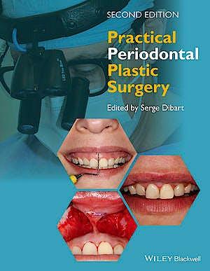 Portada del libro 9781118360651 Practical Periodontal Plastic Surgery