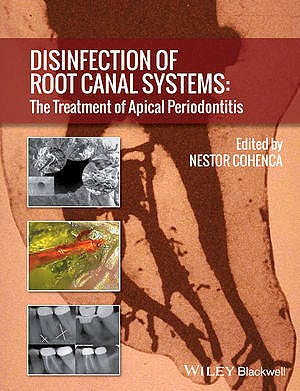 Portada del libro 9781118367681 Disinfection of Root Canal Systems: The Treatment of Apical Periodontitis