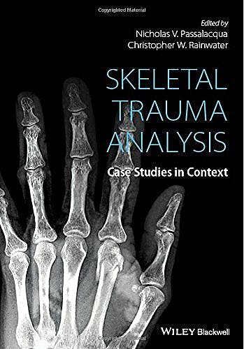 Portada del libro 9781118384220 Skeletal Trauma Analysis. Case Studies in Context
