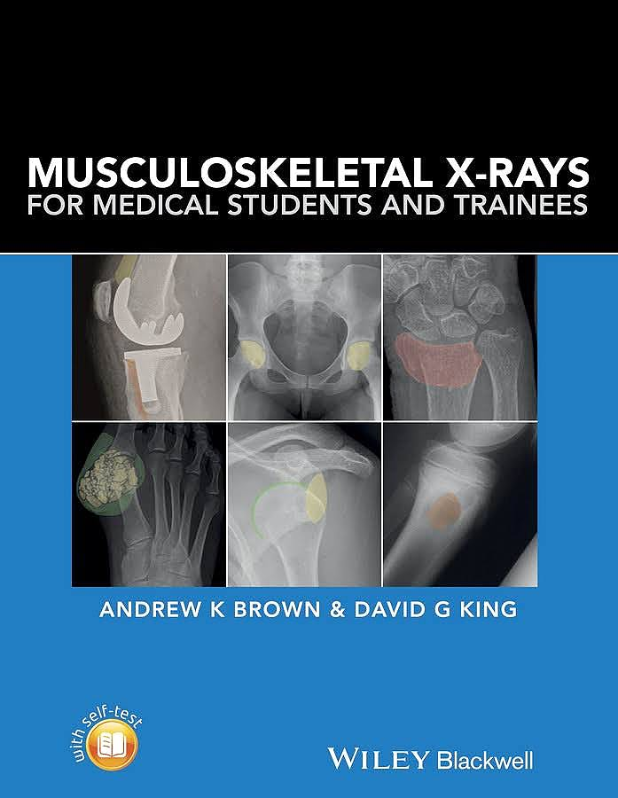 Portada del libro 9781118458730 Musculoskeletal X-Rays for Medical Students