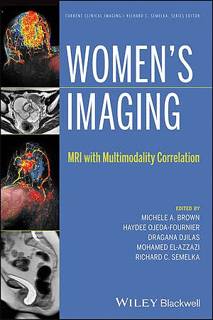 Portada del libro 9781118482841 Women's Imaging. Mri with Multimodality Correlation