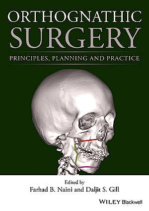 Portada del libro 9781118649978 Orthognathic Surgery. Principles, Planning and Practice