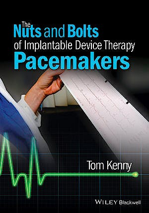 Portada del libro 9781118670675 The Nuts and Bolts of Implantable Device Therapy. Pacemakers