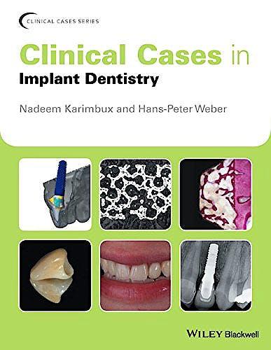 Portada del libro 9781118702147 Clinical Cases in Implant Dentistry