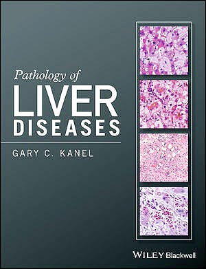 Portada del libro 9781118895030 Pathology of Liver Diseases