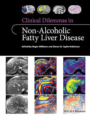 Portada del libro 9781118912034 Clinical Dilemmas in Non-Alcoholic Fatty Liver Disease