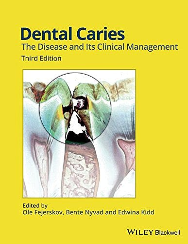 Portada del libro 9781118935828 Dental Caries: The Disease and Its Clinical Management