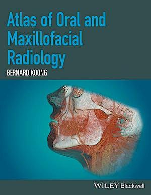 Portada del libro 9781118939642 Atlas of Oral and Maxillofacial Radiology