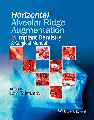 Portada del libro 9781119019886 Horizontal Alveolar Ridge Augmentation in Implant Dentistry. a Surgical Manual