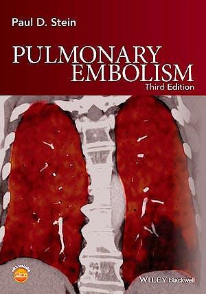 Portada del libro 9781119039082 Pulmonary Embolism
