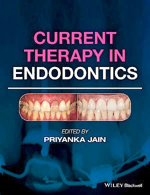 Portada del libro 9781119067559 Current Therapy in Endodontics