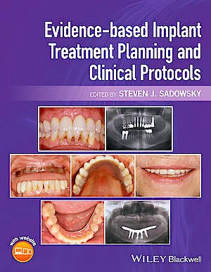 Portada del libro 9781119080039 Evidence-Based Implant Treatment Planning and Clinical Protocols