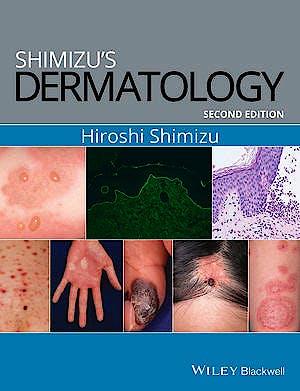 Portada del libro 9781119099055 Shimizu's Dermatology
